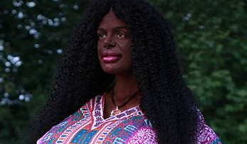 German Woman Undergoes Transition Surgery To Become Black