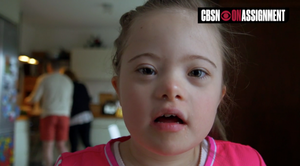 Icelanders with Down syndrome 'disappearing'